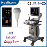 Equipo Médico Trolley completa Digital 4D Doppler color Escáner Ultrasonido