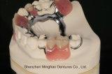 La fabricación de la dentadura echó la dentadura parcial con el corchete claro hecho en China