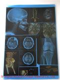 Medische CT Film voor de Zaal van de Röntgenstraal
