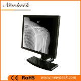 moniteur de pente médicale d'affichage à cristaux liquides de 1MP 1280X1024 pour le rayon de X médical
