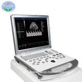 3D/4D Portable de Diagnostic du système d'échographie Doppler couleur