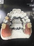 Il metallo di titanio puro ha lanciato la protesi dentaria parziale