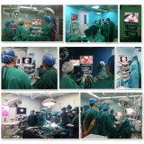 Câmara de endoscópio portátil para diagnóstico otorrinolaringológico com fonte de luz LED