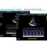 Больница для цветного доплеровского ультразвукового аппарата 4D Sonoscape S22 с двойным экраном