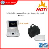 Voller Digital-Laptop-beweglicher Ultraschall-Scanner hergestellt in China