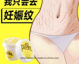 Embarazo de la crema del retiro de la marca de estiramiento de las arrugas de Pasjel que repara la crema del retiro de la cicatriz
