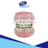 De orthodontische Steunen van het Metaal van de Steunen 0.022# van het Metaal met FDA ISO13485 van Ce 345#Hooks