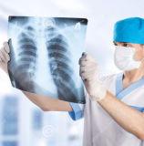 Meilleure qualité de film de radiographie médicale même que les films Agfa