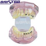 Modello dentale di nuovo arrivo dei denti con la parentesi di ceramica