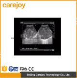 Precio de fábrica ordenador portátil de 10.4 pulgadas Full Digital escáner de ultrasonido con sonda convexa (RUS-9000E2) -Fanny