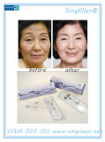 Enchimento Injectable do enrugamento do ácido hialurónico de Singfiller para a cirurgia plástica