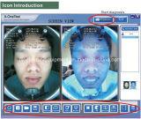 Машина анализатора кожи зеркала портативного анализа кожи стороны волшебная