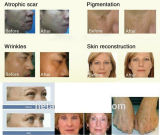 4 in 1 Multifucntional scelgono strumentazione H-9008c di bellezza di rimozione dei capelli Removal+Tattoo