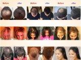 A volta da linha fina enraíza o pó da fibra do engrossamento do cabelo do encobrimento para o cabelo imediatamente