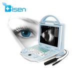 BS-ODU5中国の携帯用眼の超音波眼科学のためのBのスキャンナー