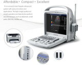 高品質の良い画像の病院のための携帯用超音波カラードップラー