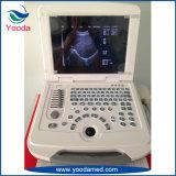 Tipo sistema de la carretilla del ultrasonido del equipo del hospital del suministro médico