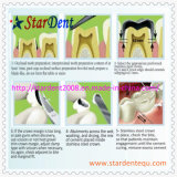 أسنانيّة [ستينلسّ ستيل] تاج/أسنانيّة تجديد تاج