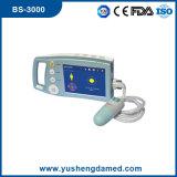 Escáner digital portátil vejiga BS3000 CE aprobado