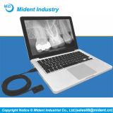 新しいEdleni Intra-Oralデジタル歯科X光線センサー
