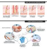 Лазер диода 808nm медицинского удаления волос лазера портативный