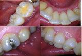 Dientes sin hilos del hogar de la salida del USB que blanquean la cámara intraoral dental