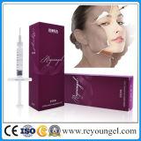 Ácido hialurónico del llenador cutáneo facial de Reyoungel para la inyección (1.0ml y 2.0ml profundos)