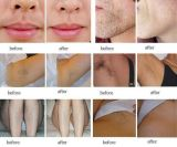 IPL Elight Laser Hair Removal Home IPL voor Sale