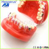 L'orto modello di Dontists con metallo inquadra i denti irregolari