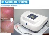 A telangiectasia de alta freqüência de tratamento de remoção de vasos sangüíneos segura