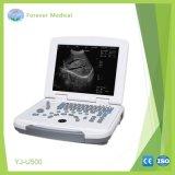 의료 기기 가득 차있는 디지털 B 모형 초음파 스캐너 (YJ-U500)