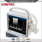 携帯用超音波のスキャンナーカラードップラー超音波診断システム