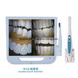 Configurazione del video dello schermo di tocco dello schermo di vittoria 8 in strumentazione dentale della macchina fotografica Intraoral