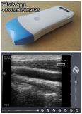 La radio tenue dans la main de scanner d'ultrason de professionnel médical branchent