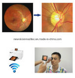 Non Mydriatic Portable Auto Fundus Camera