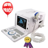 beweglicher Scanner des Ultraschall-10-Inch mit linearem Fühler (RUS-6000D) --Fannyw