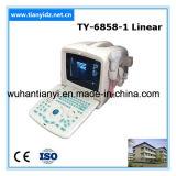 Низкая цена лучшие продажи цифровых портативных ультразвукового сканера (TY-6858A-1)