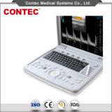 Échographie Doppler couleur portable Système de diagnostic à ultrasons