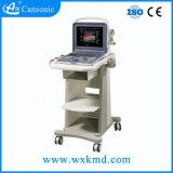 Niedriger Preis aber gute Qualitätsbeweglicher Farben-Doppler-Ultraschall-Scanner (K6)