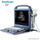 S2V Sonoscape 의학 수의 수의사 휴대용 색깔 도풀러 초음파