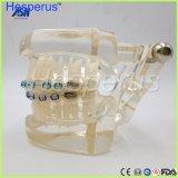 Modèle en céramique ortho- de dents de bride