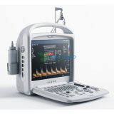 Diagnosefarbeportable-Ultraschall doppler-Digital