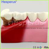 Modèle patient d'anatomie de transmission de dentiste de modèle de dent de carie