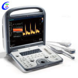 Pw Cw를 가진 Sonoscape S6 Cardiac 4D Color 도풀러 Echo Ultrasound Machine