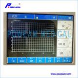Het medische Ventilator van de Apparatuur kenmerken-ICU