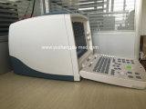 Mode B Système ultrasonore hautement qualifié Système d'échographie de l'hôpital Scanner
