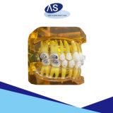 Собственная личность зубоврачебного материала ортодонтическая перевязывая центр изготовления высокого качества кронштейна