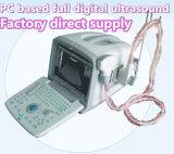 Escáner portátil del ultrasonido de la venta de la fábrica LCD para la ginecología de la obstetricia cardiaca
