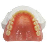 Les soins dentaires de la pleine dents prothèse acrylique
