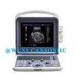 Scanner d'ultrason de couleur de qualité